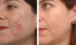 rezultate-dermalosophy