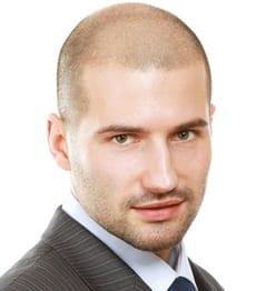 Solutia permanenta pentru chelie: tratamentul de micropigmentare a scalpului, inovatie la SlimArt