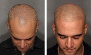 micropigmentare-scalp-barbati
