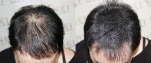 micropigmetare-scalp-femei
