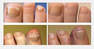 Micoza unghiilor (onicomicoza): cauze, simptome, transmitere, tratament, preventie | Bioclinica