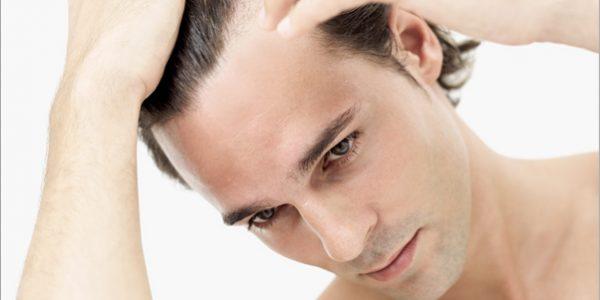 Micropigmentarea scalpului pentru tratarea cheliei la barbati