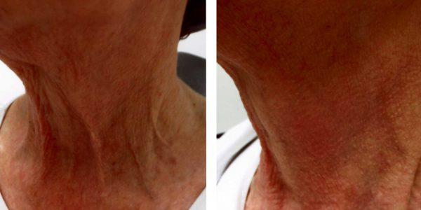 Rejuvenarea si revitalizarea pielii cu Fractora