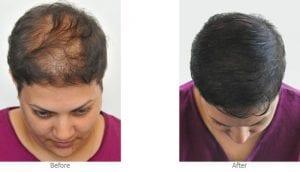 micropigmetare-scalp-femei-slimart