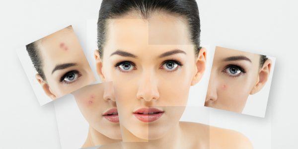 Tratamente faciale pentru afectiunile acneice ale tenului
