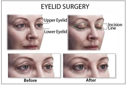 Blefaroplastia – intervenţia chirurgicală ce redă tinereţea ochilor