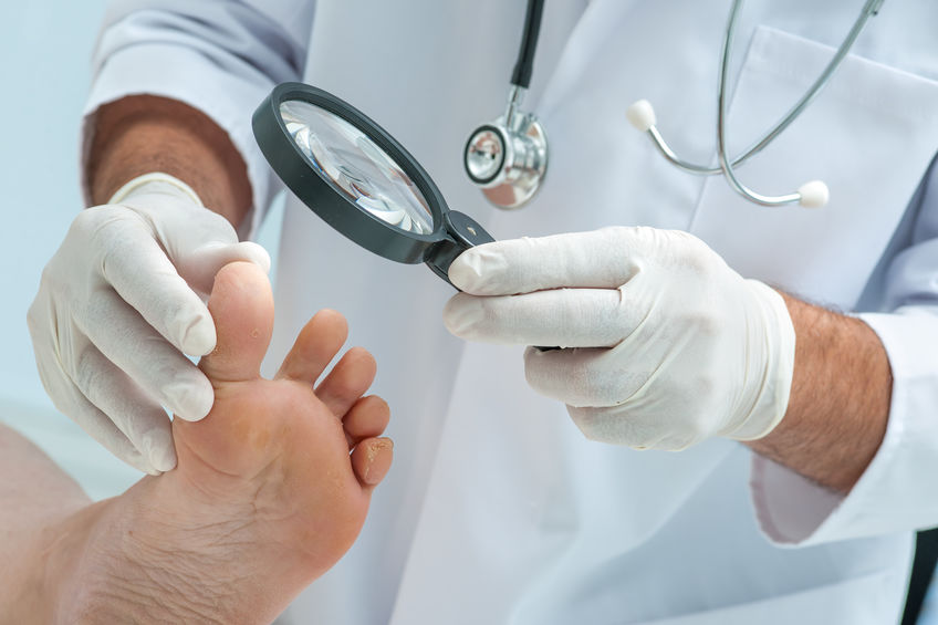Micoza unghei – cauze si tratament